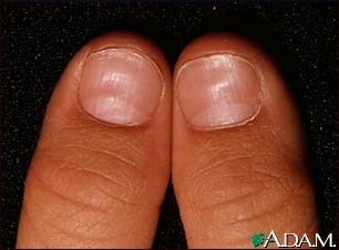 Fingernails and Thyroid Disease http://drugline.org/ail/pathography/1240/