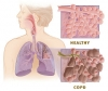 Chronic obstructive pulmonary disease - control drugs