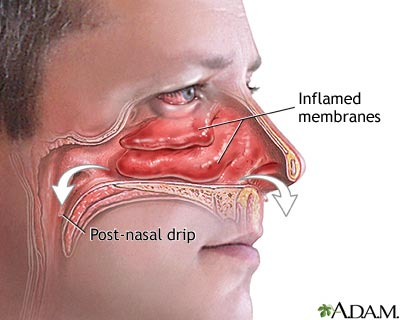 how to get thick mucus out of throat