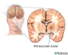 Brain tumor - primary - adults