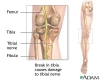 Tibial nerve dysfunction