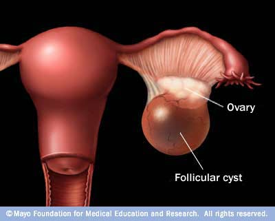 leaking ovarian cyst