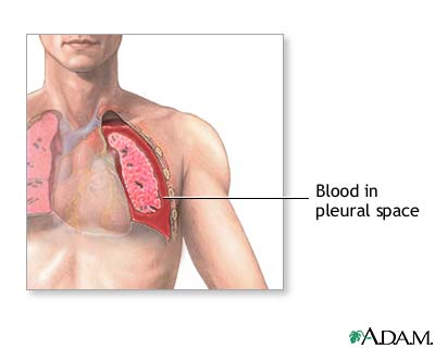 Tuberculosis Pictures Patients Hemothorax is a collec...