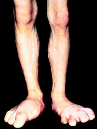 Acromegaly Causes Symptoms Treatment Acromegaly