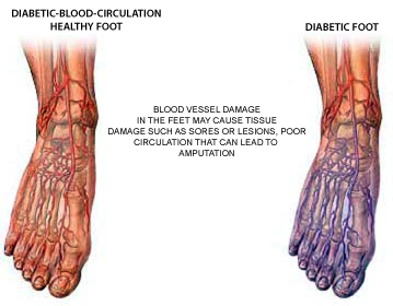 treatment for nerve damage in foot