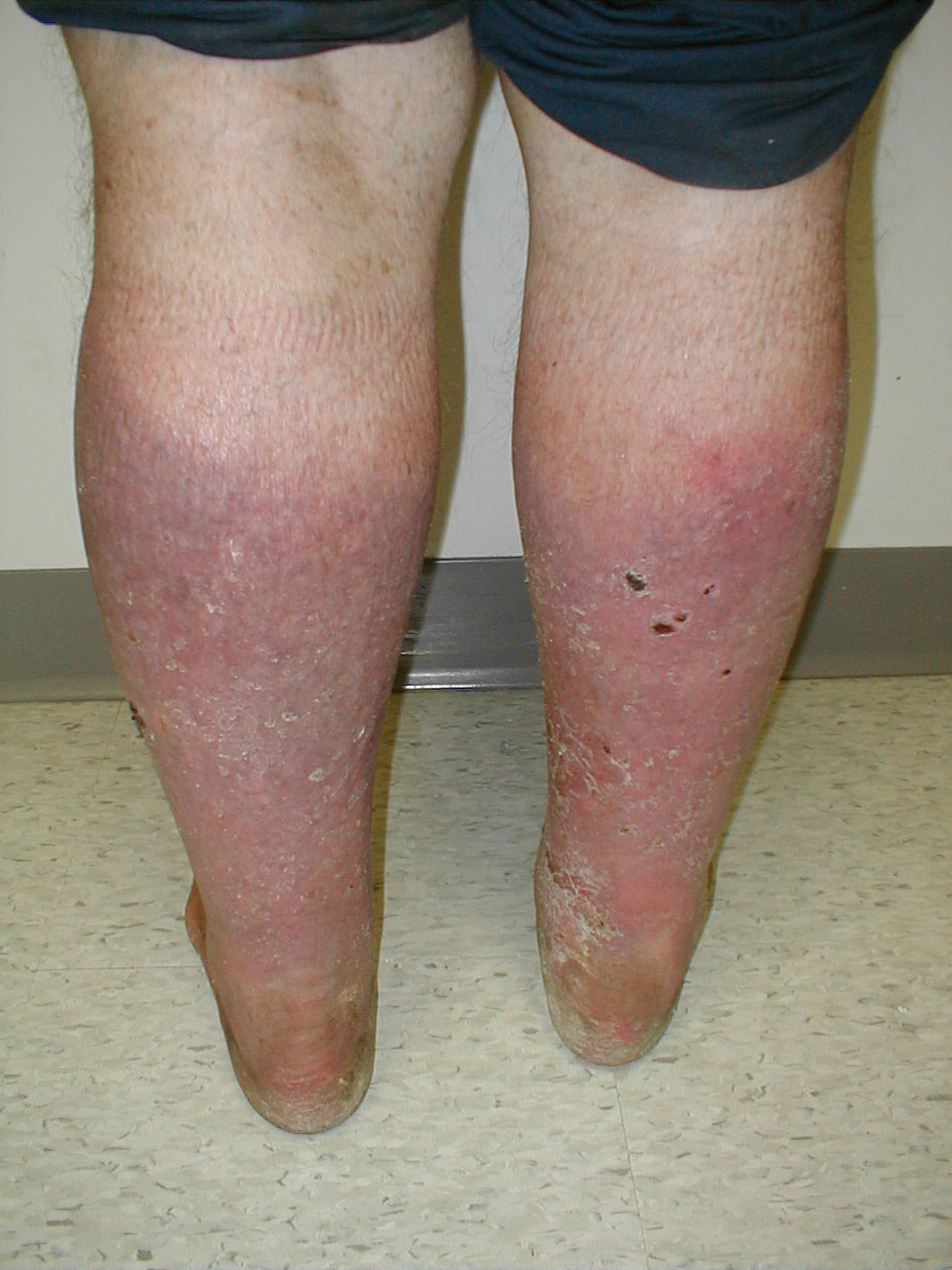 Chronic Venous Insufficiency - Pictures, Treatment and ...
