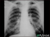 Metastatic cancer to the lung