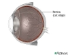 Retinal detachment repair
