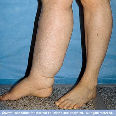 Mild Swelling In Arms And Legs 12