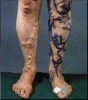 Varicose vein - noninvasive treatment