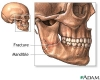 Jaw - broken or dislocated