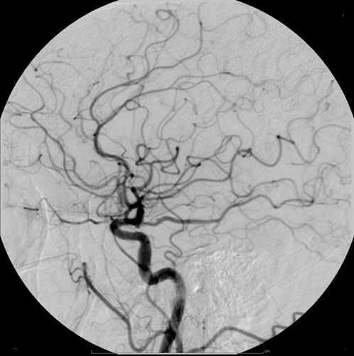 Cerebral angiography. Causes, symptoms, treatment Cerebral ...