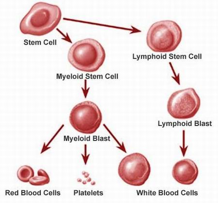 leukemia bone marrow and treatment After the treatment is finished, the patient gets an infusion of blood-forming   leukemia is a disease of the blood and bone marrow, so giving the.