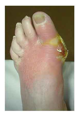 Osteomyelitis. Causes, symptoms, treatment Osteomyelitis