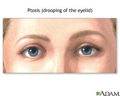 Eyelid drooping. Causes, symptoms, treatment Eyelid drooping