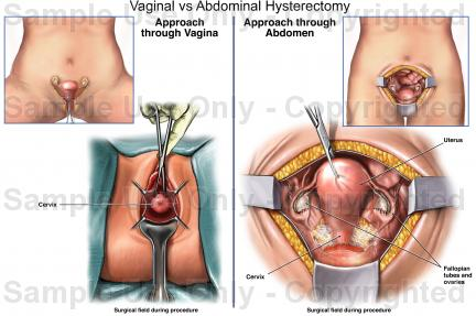 Abdominal Hysterectomy Causes Symptoms Treatment