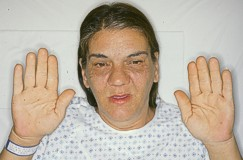 Acromegaly. Causes, symptoms, treatment Acromegaly