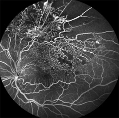Angiography Fluorescein Causes Symptoms Treatment