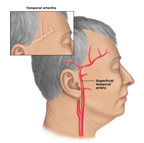 Arteritis Temporal Causes Symptoms Treatment Arteritis