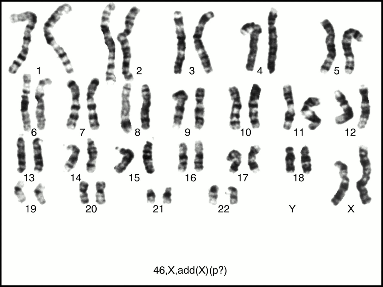 Sex chromosomes definition