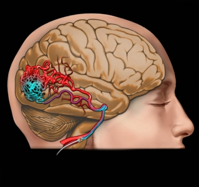 arterio venous malformation An arteriovenous malformation (avm) is a congenital defect between the arteries and veins the condition affects the connection between these blood vessels, and disrupts the flow of blood between them although this defect can occur anywhere, avms are most common in the brain or spine.