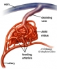 AVM (arteriovenous malformation)