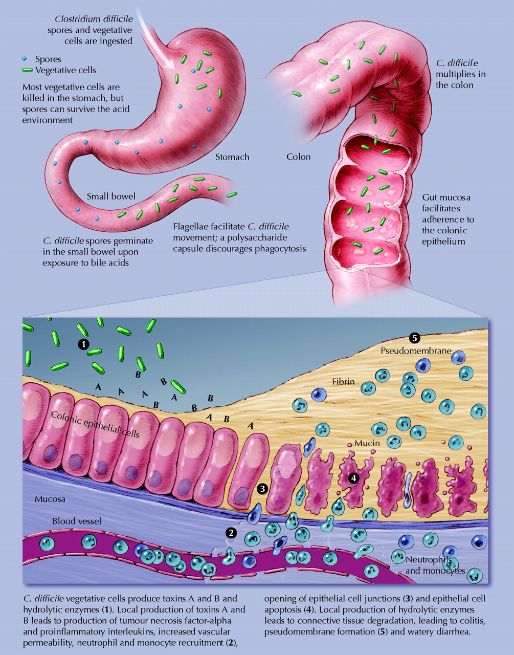 C Difficile Causes Symptoms Treatment C Difficile