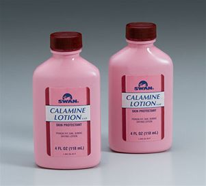 Calamine Causes Symptoms Treatment Calamine