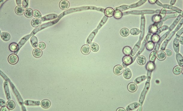 candida-albicans-vo-vlagalishe