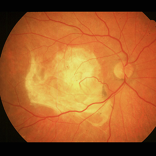 macular dystrophy retina - photo #32