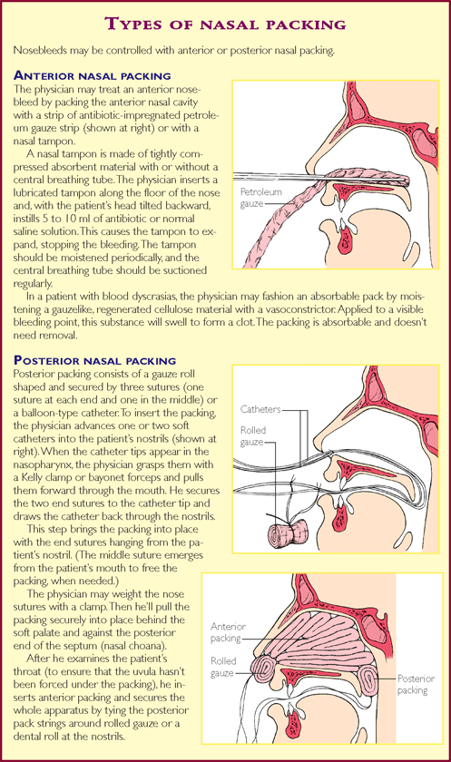 how to stop a posterior nosebleed fast