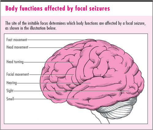 febrile seizures Read about febrile seizures, where a young child with a fever has a fit febrile seizures are relatively common and, in most cases, aren't serious.