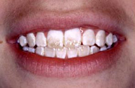 Fluorosis Causes Symptoms Treatment Fluorosis