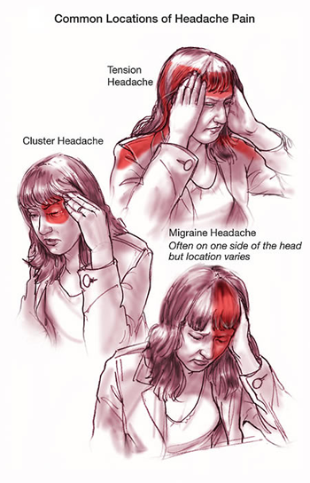 Headache Cluster Causes Symptoms Treatment Headache
