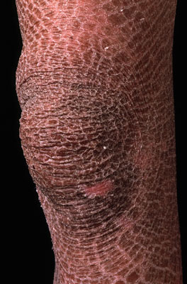 Ichthyosis vulgaris. Causes, symptoms, treatment ...