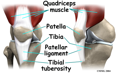 the description and prevention of jumpers knee Patellar tendinitis is a relatively common cause of pain in the inferior patellar  region in athletes it is common with frequent jumping and studies have shown it  may be associated with stiff ankle movement and ankle sprains contents 1  signs and symptoms 2 causes 3 diagnosis 4 treatment 5 see also   jumper's knee (patellar tendinopathy, patellar tendinosis, patellar tendinitis).