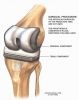 Knee replacement, total