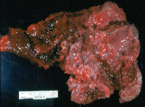 Lung Cancer Oat Cell Causes Symptoms Treatment Lung