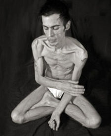 People with Anorexia Nervosa