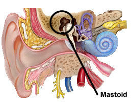 What is mastoid air cells definition of 171 mastoid 187