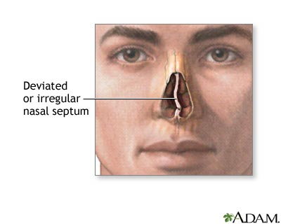Definition of   171  Nasal septum deviation   187 Nasal Septum Deviation Surgery