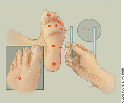 what causes sensory neuropathy