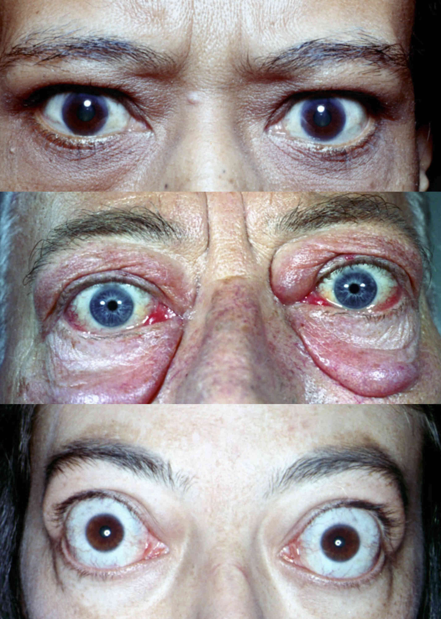 Ophthalmopathy