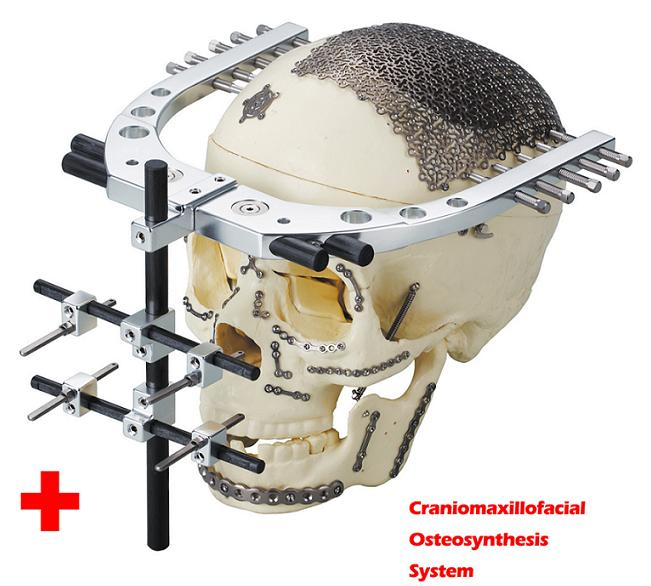osteosynthesis plates The optimal surgical management of dislocated three- and four-part fractures of the proximal humerus in elderly patients remains unclear most used techniques are hemiarthroplasty and angle-stable locking compression plate osteosynthesis.