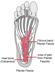 plantar fasciitis how to treat