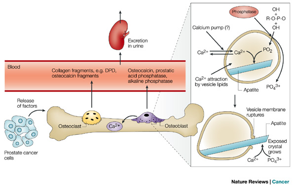 Prostate Cancer Review Nature