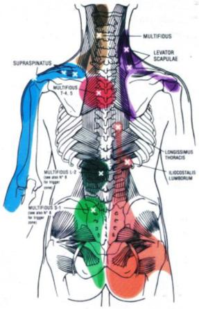 Referred Pain Causes Symptoms Treatment Referred Pain