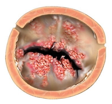 rheumatic fever rheumatic heart disease Rheumatic fever, which consists of delayed nonsuppurative sequelae of group a streptococcal (gas) pharyngitis, is a diffuse inflammatory disease of the connective tissue involving the heart.