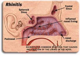 the symptoms and treatment for rhinitis