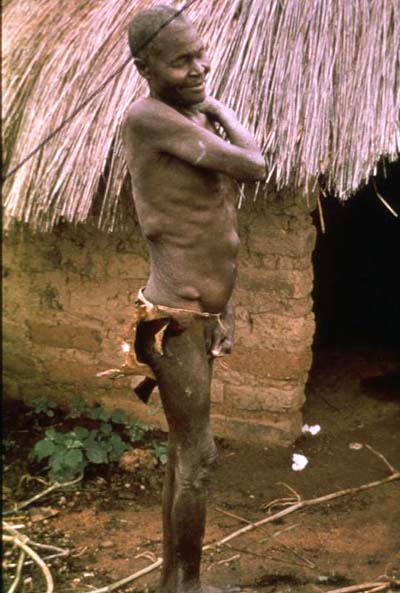 River Blindness Causes Symptoms Treatment River Blindness